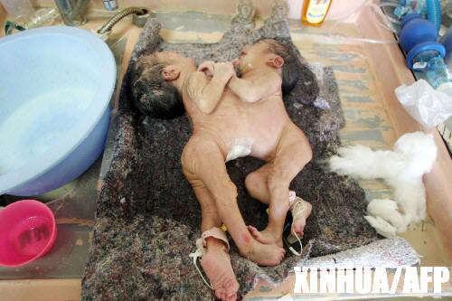,医护人员在给刚出生不久的一对连体婴儿洗澡.-超震撼的连体双胞图片
