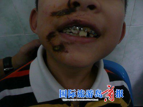 儿童牙齿烂掉结构图