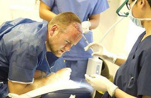 有没有一个人做植发手术的吗