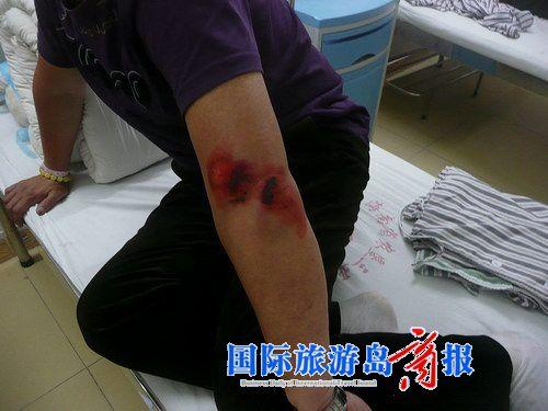 摩的司机在医院治疗时逃走       事故发生后,王希武左胳膊流血图片