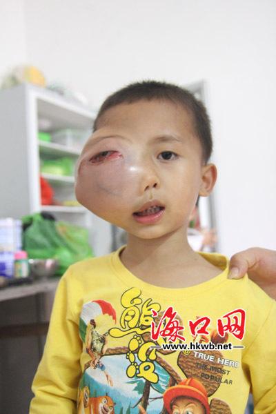 """没了肿瘤的小正祥是个可爱漂亮的""""小正太"""",王波说他特别调皮,喜欢到处"""