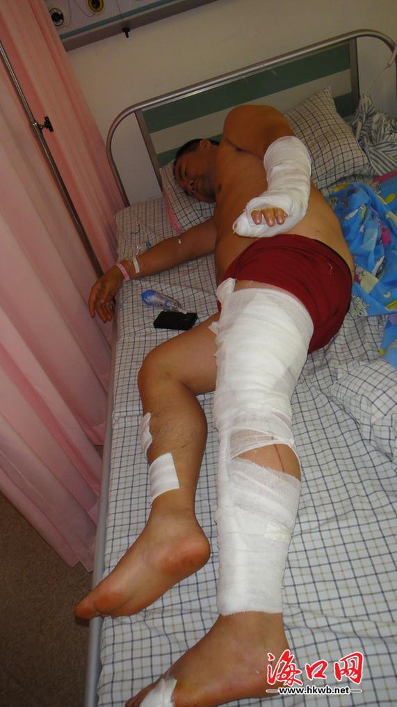 成永刚/被砍伤的成永刚躺在病床上。