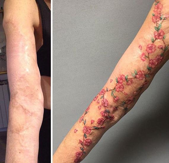 人体艺术!丑陋伤疤巧变精美纹身